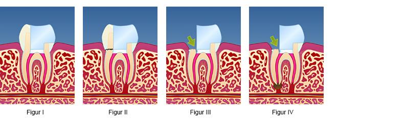 smerter i rotfylt tann